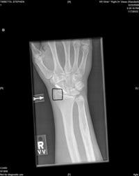Steve's X-ray
