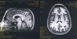 FMRI of Steve's brain